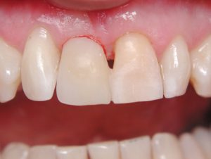 شکست کامپوزیت دندان
