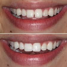 طریق کامپوزیت دندان