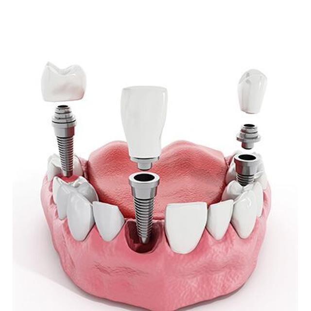 درآوردن ایمپلنت دندان