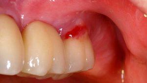 قرمزی و تورم لثه که ناشی از عفونت می باشد