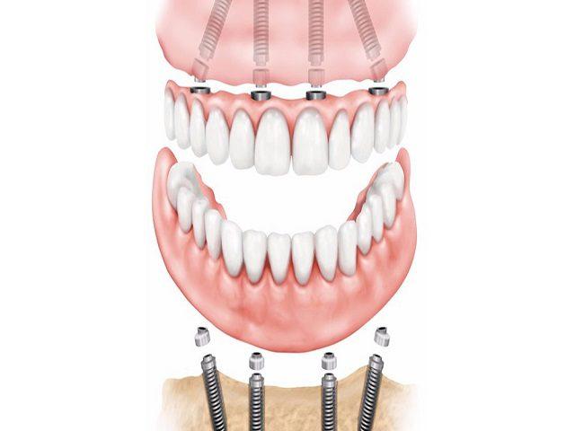 آیا میشود همه دندان ها را ایمپلنت کرد؟
