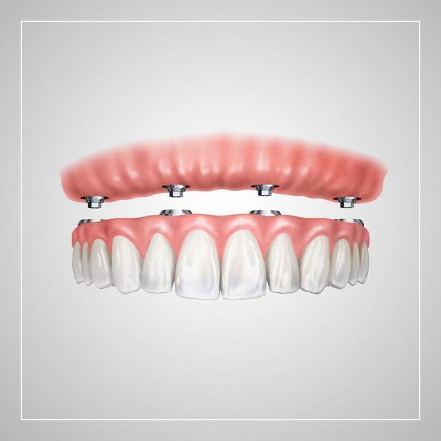 کاشت دندان به روش All on 4