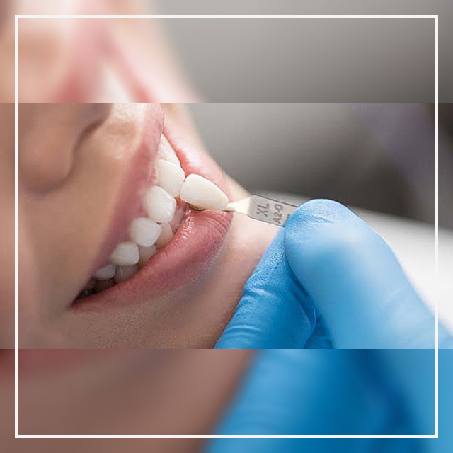 کاشت لمینت دندان