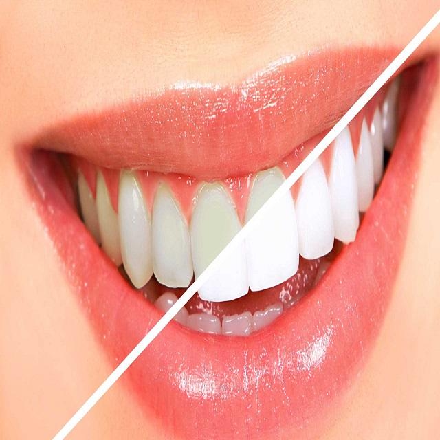 سفید شدن دندان ها