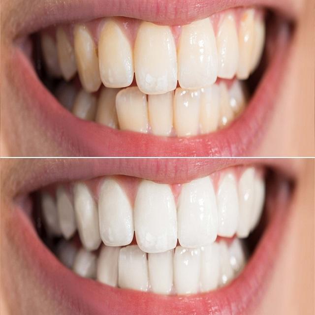 سفید شدن دندان های زرد