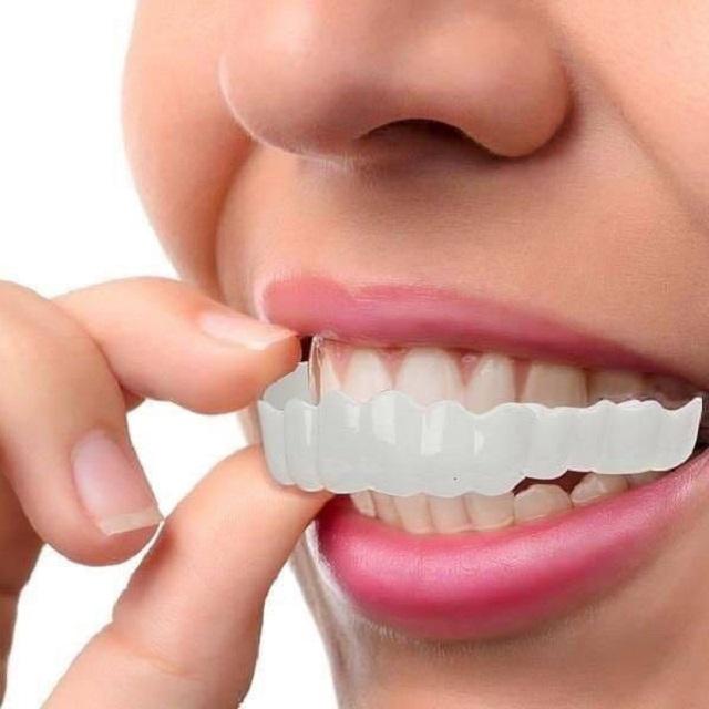 قرار دادن اسنپ آن اسمایل روی دندان