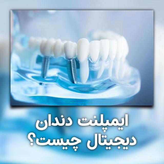 ایمپلنت دندان دیجیتال چیست؟