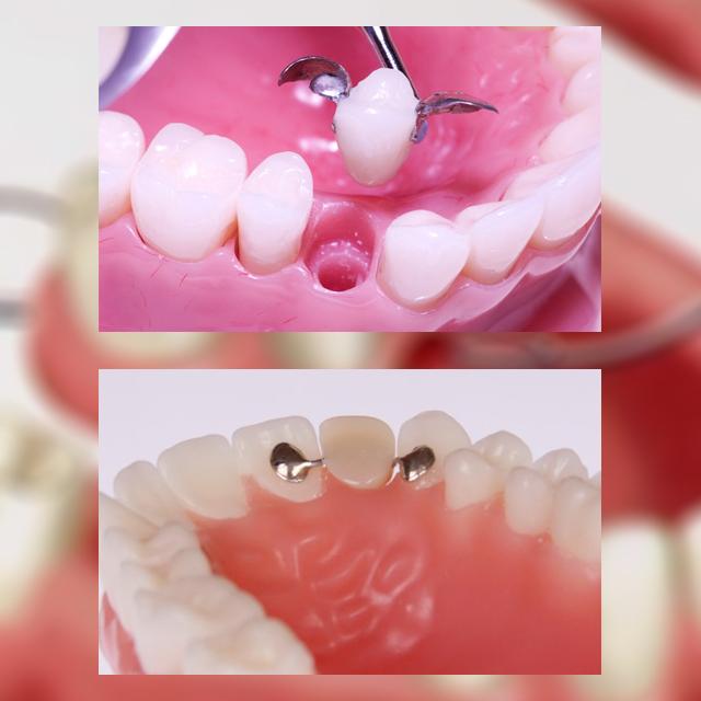 قیمت بریج دندان در سال 99