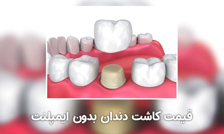 قیمت کاشت دندان بدون ایمپلنت