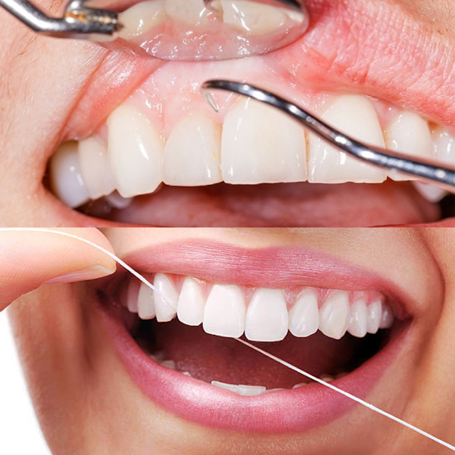 معاینه لثه و نخ دندان کشیدن
