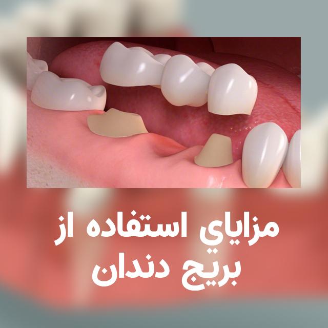مزایای استفاده از بریج دندان