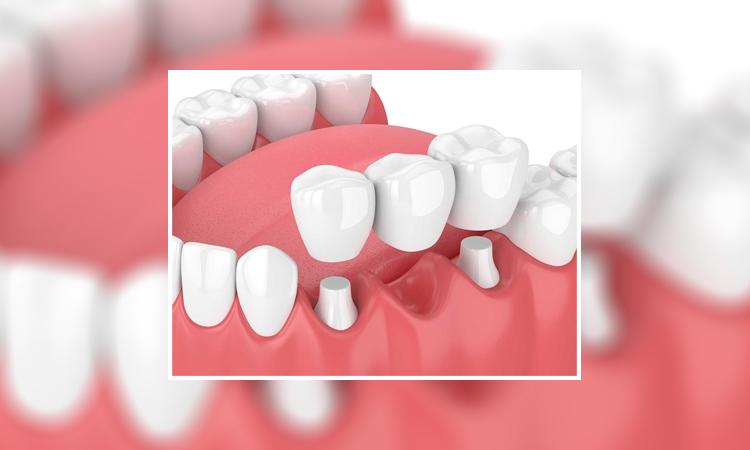 روش جدید کاشت دندان بدون ایمپلنت