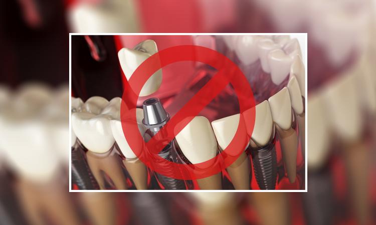عدم استفاده از ایمپلنت برای کاشت دندان