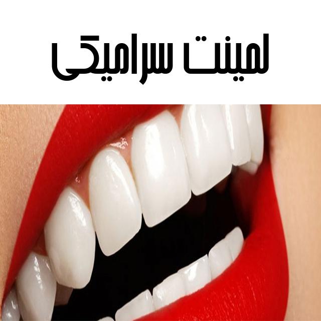 طرح لبخند زیبا با لمینت سرامیکی دندان