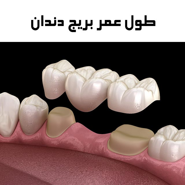 کاشت بریج دندان لبه دار