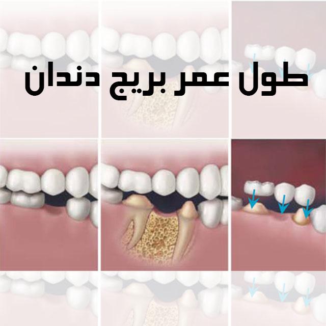 عمر بریج دندان