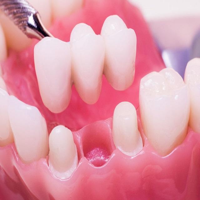 کاشت پل دندان توسط دندانپزشک مجرب