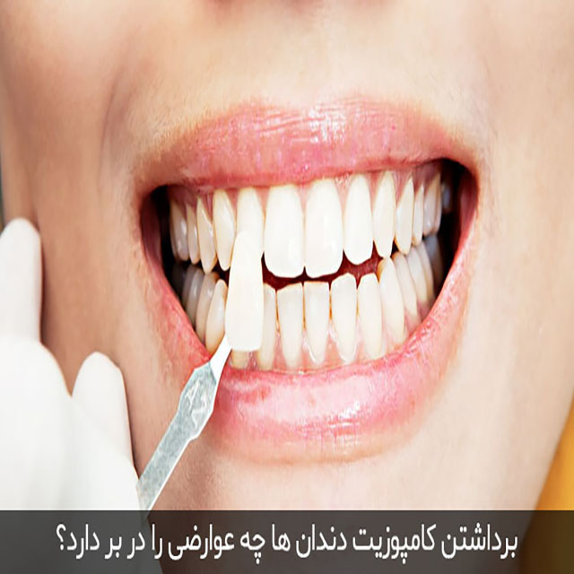 برداشتن یا گذاشتن کامپوزیت دندان