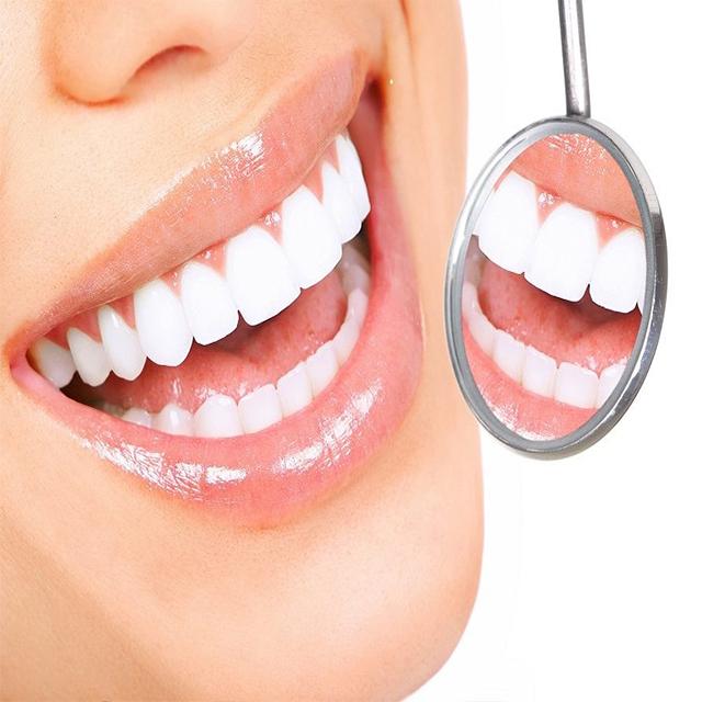 بررسی سفیدی دندان ها