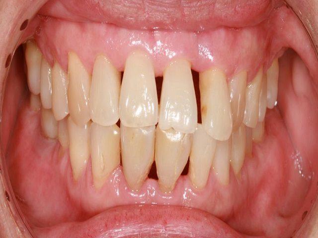جداشدن لثه از دندان