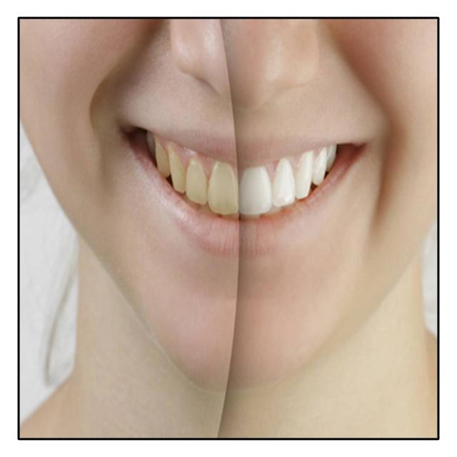 دندان های سفید رنگ و زرد رنگ