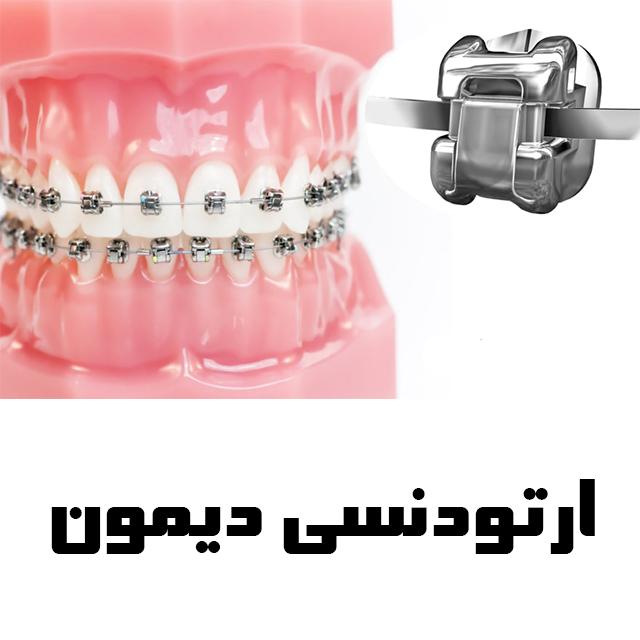 ارتودنسی دندان دیمون