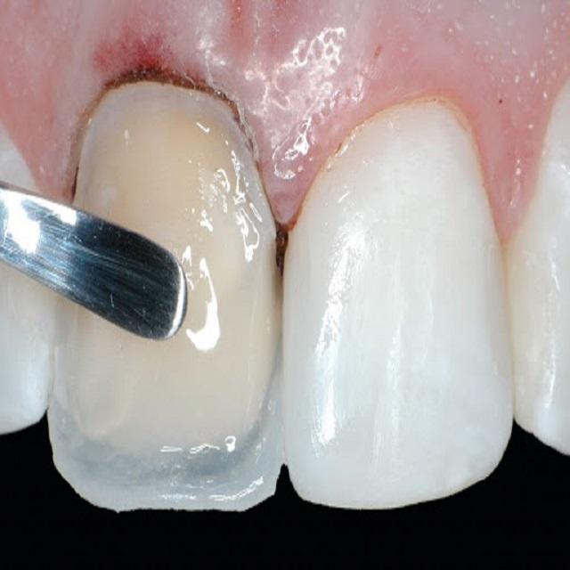 نحوه کاشت کامپوزیت دندان