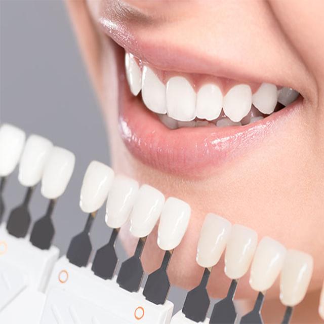 لمینت سرامیکی همرنگ دندان ها