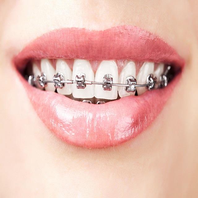 ارتودنسی دندان معمولی