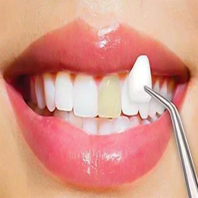 قرار دادن کامپوزیت دندان رو دندان ها