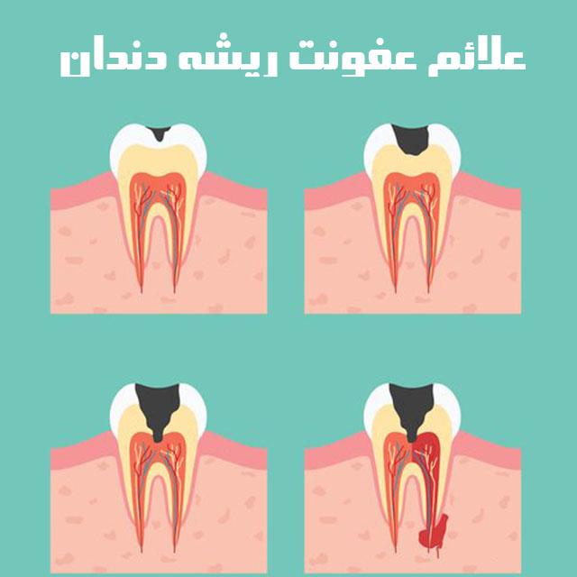 عفونت ریشه دندان