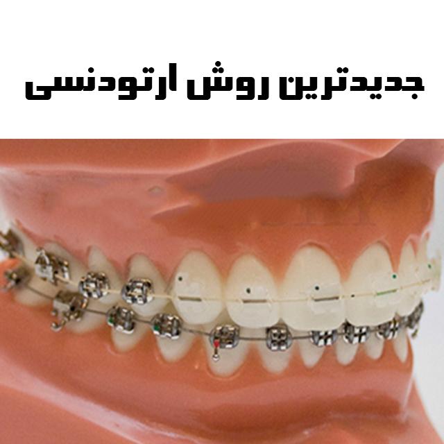 ارتودنسی کامل دندان ها