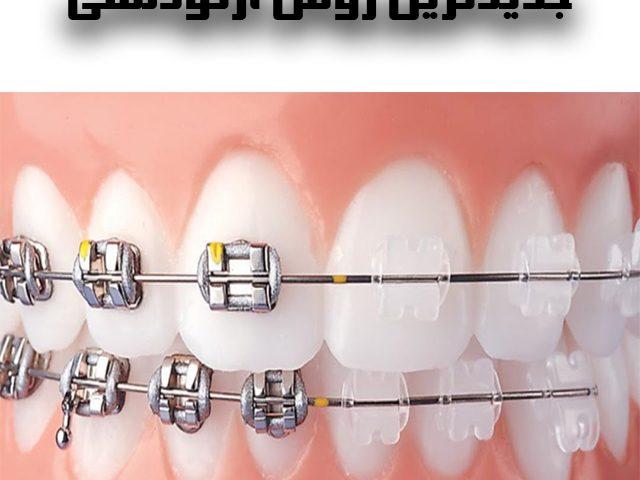 ارتودنسی بخشی از دندان ها