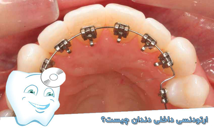 ارتودنسی داخلی دندان چیست؟