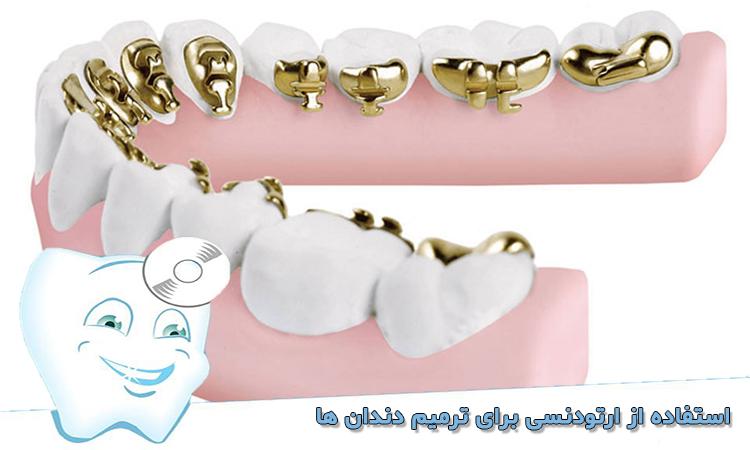 استفاده از ارتودنسی برای ترمیم دندان ها