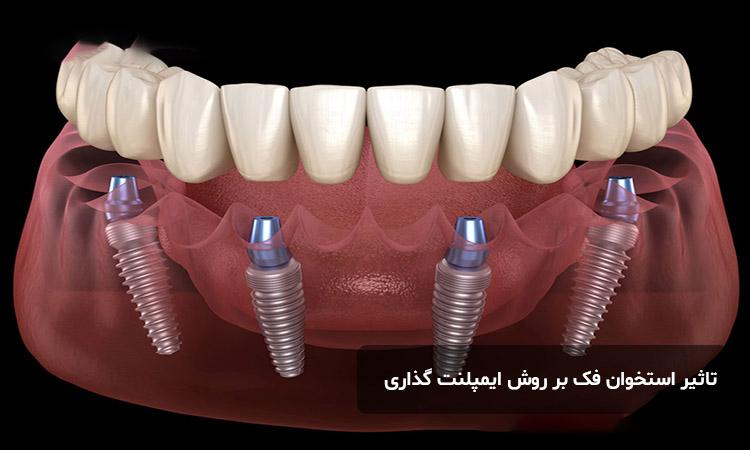 ارتباط استخوان فک با ایمپلنت