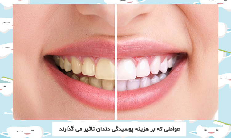 دندان سفید شده