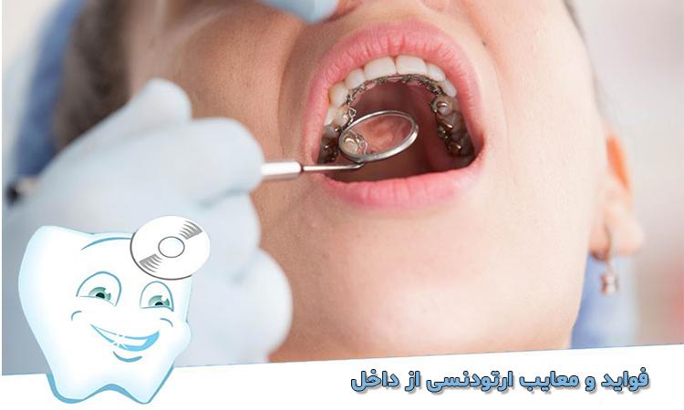 معاینه ارتودنسی داخلی