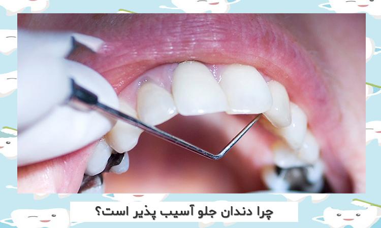 نازکی دندان های جلویی