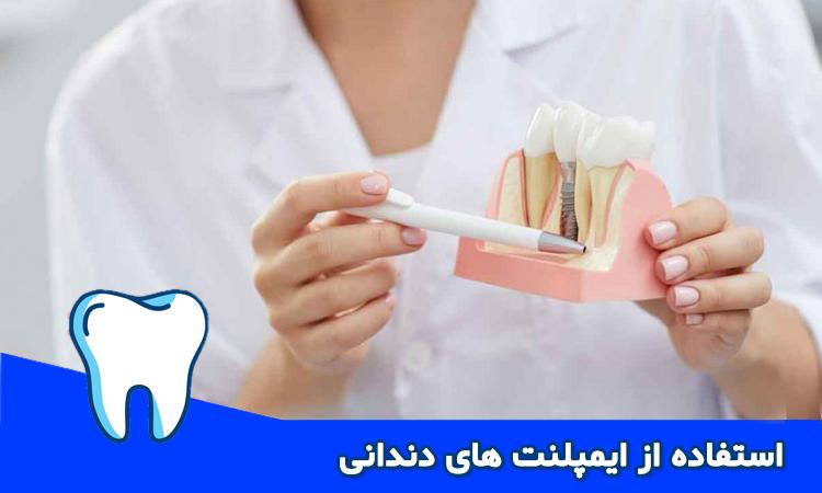 مزایای ایمپلنت های دندان