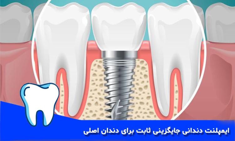 ایمپلنت دندان جایگزینی ثابت برای دندان اصلی