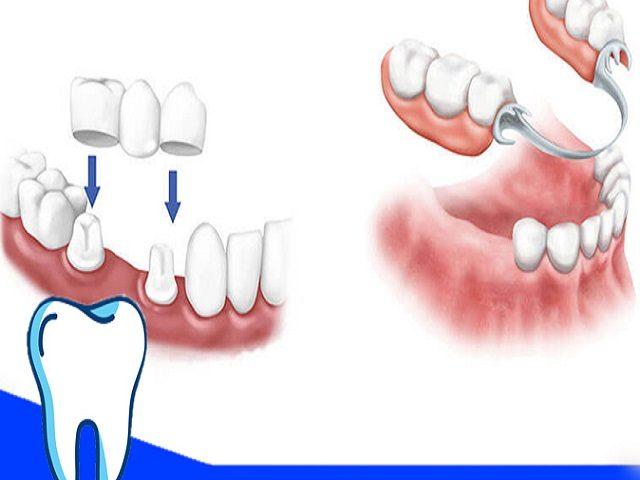 دندان مصنوعی ثابت بهتر است یا متحرک؟