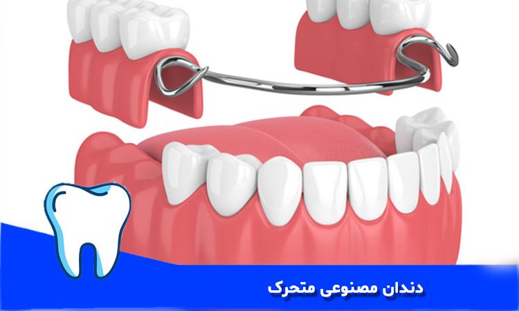 دندان مصنوعی متحرک