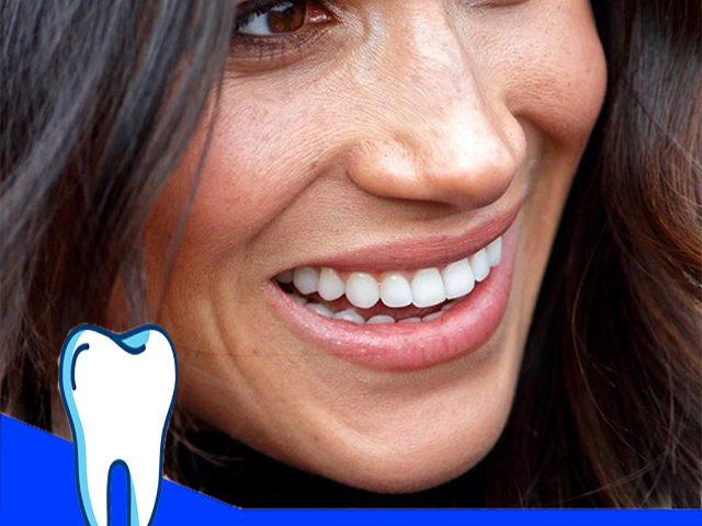 راز سفیدی دندان افراد مشهور