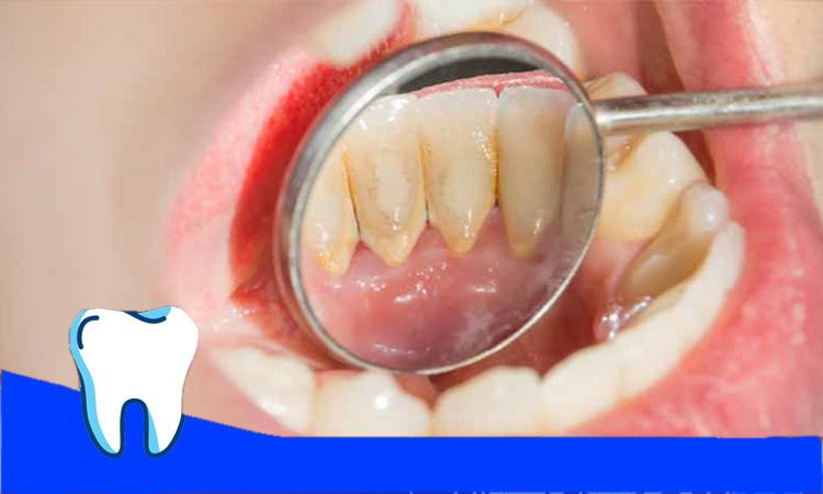 پوسیدگی در پشت دندان ها