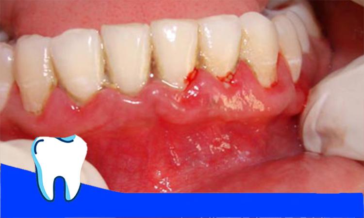 زخم لثه به دلیل پلاکت دندان