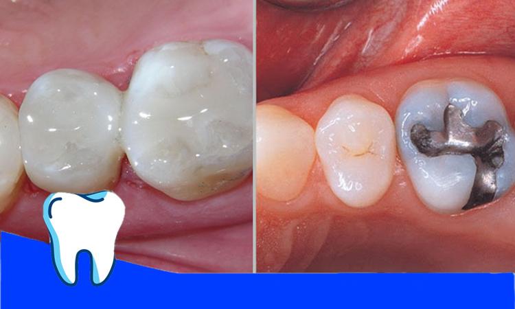 امالگام و کامپوزیت بر روی دندان
