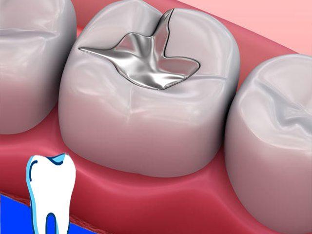 پر کردن دندان با آمالگام یا کامپوزیت