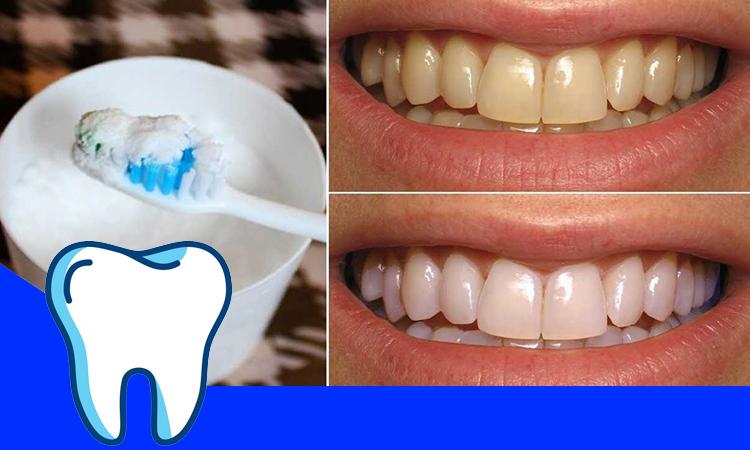 شستن دندان ها با جوش شیرین