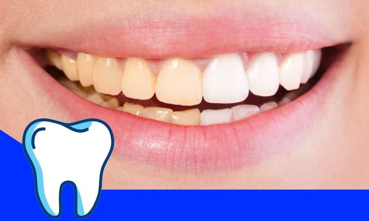 دلایل زرد شدن دندان ها